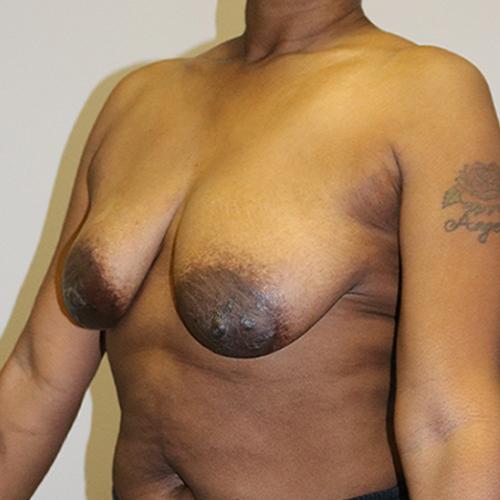 Breast Lift Patient