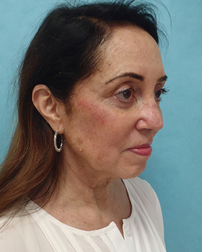 facelift patient